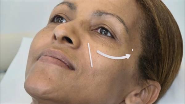 Acide hyaluronique visage