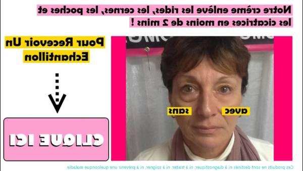 appareil anti rides newa nw visage collagene