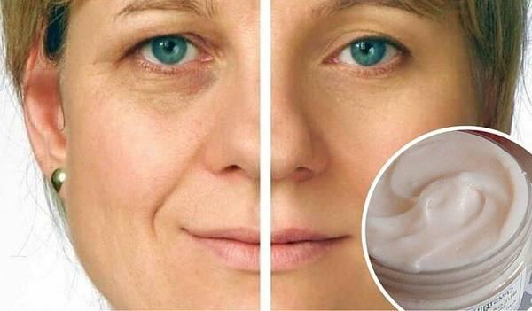 meilleure crème anti rides selon les dermatologues 2018
